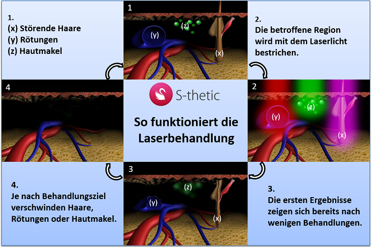 So funktioniert die Laserbehandlung | S-thetic Derma Berlin